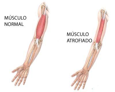 musculo atrofiado