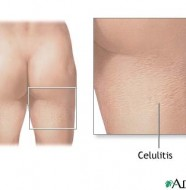 celulitis