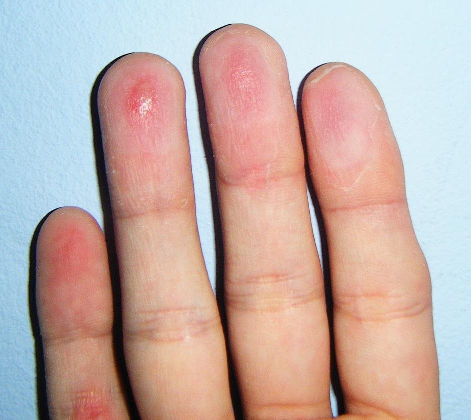 Dolor dactilar