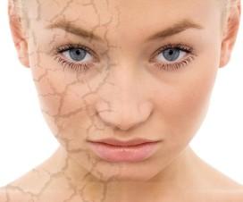 remedios piel seca