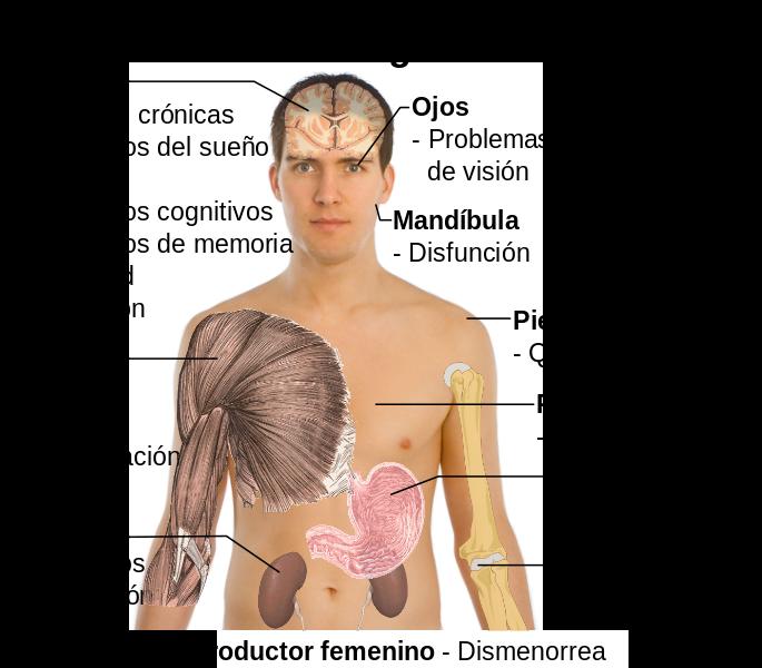 sintomas fibromialgia