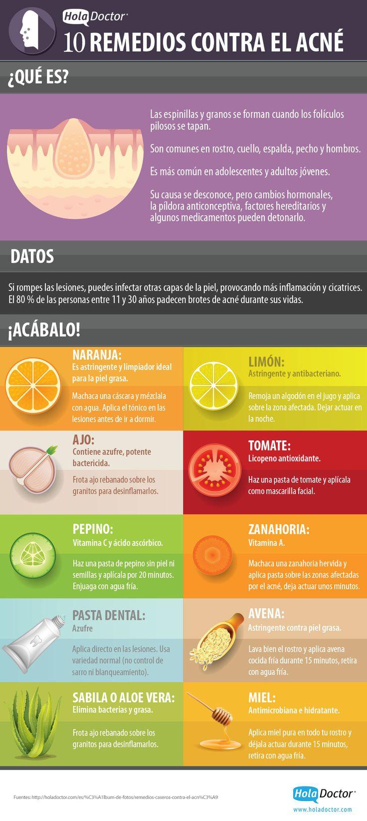 Infografía acné