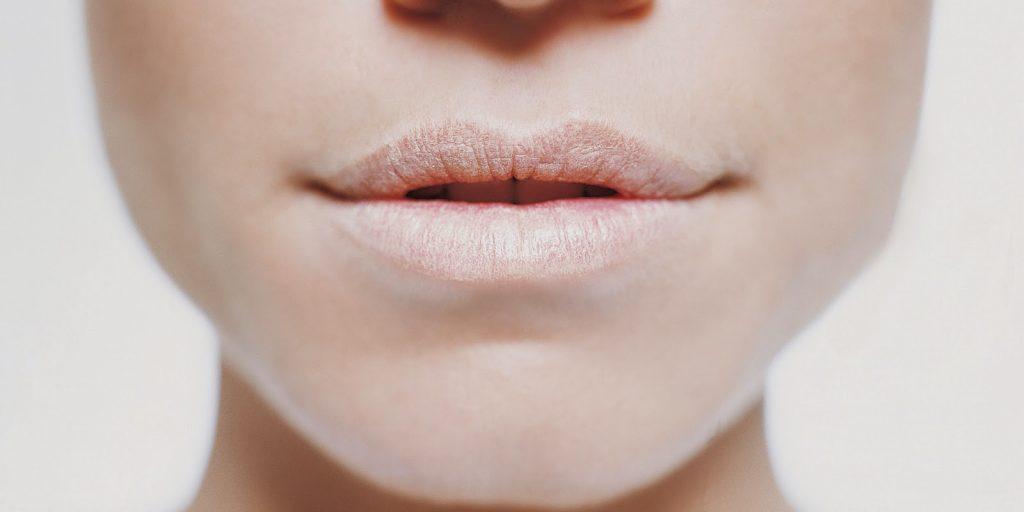 labios-agrietados